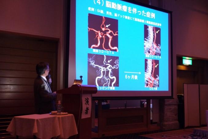 脳血管障害の外科治療について講演頂きました。