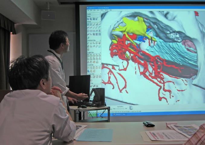 シミュレーターを使って手術手順確認のデモ。