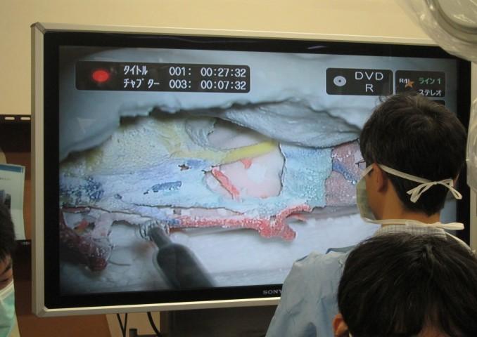 実際に石膏モデルでの模擬解剖実演中。